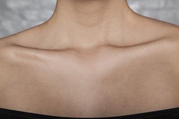 skinny bones in a woman, bad diet or illness