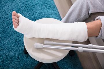 Man's Broken Leg