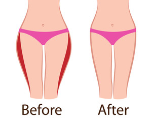Fat and slim  girls' hips. Before and after.