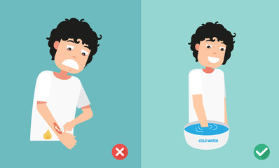 wrong and right ways first aid emergency treatment skin burn,illustration