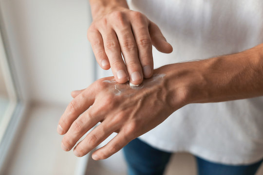 Man applying hand cream, closeup
