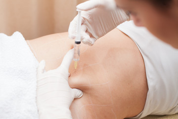 mesotherapy treatment on woman's body