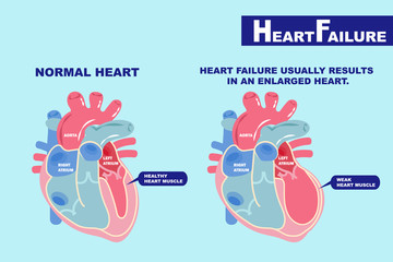 heart failure concept