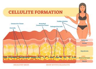 Cellulite formation vector illustration diagram, medical information scheme.