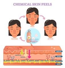 Chemical skin peels vector illustration diagram