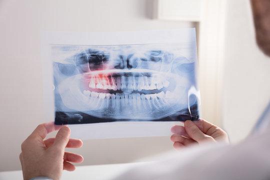 Doctor Holding Teeth X-ray