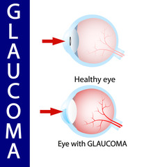 Glaucoma eye,  pressure,  optic,  nerve,  blindness,
