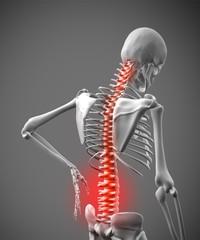 Digital skeleton rubbing lower back pain