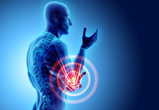 3d illustration of human elbow injury.