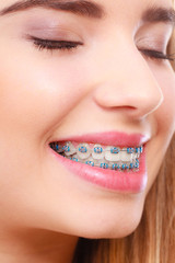 Woman smiling showing teeth with braces