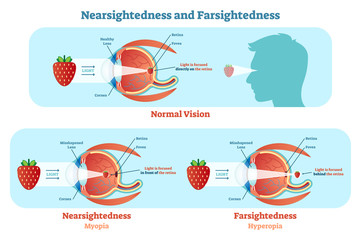 Far Sightedness and Near Sightedness vector illustration diagram, anatomical scheme.