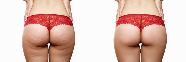 Female buttocks with cellulite before and after on a white background, red thongs, after a medical procedure, beautiful female pop, skin defects, solution, cellulite closeup