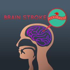 brain stroke icon design. logo vector illustration