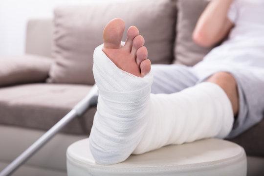 Man's Plastered Leg