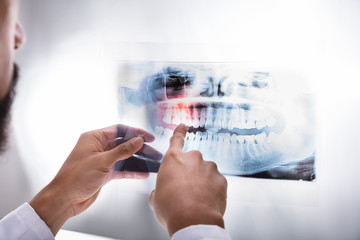 Dentist Examining Teeth X-ray