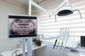 Dental x-ray footage in dental clinic