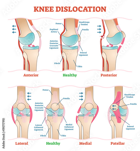 Knee Dislocations Medical Vector Illustration Diagrams Anatomical