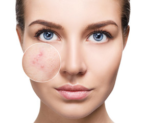 Young woman with acne skin in zoom circle.