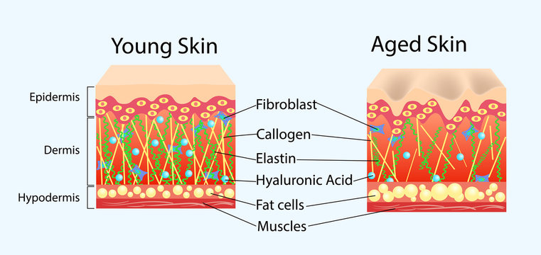 Vector diagram with schemes of two types of skin, for healthcare illustrations