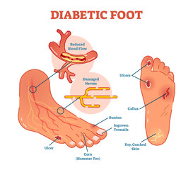 Diabetic foot medical vector illustration scheme with common foot conditions.