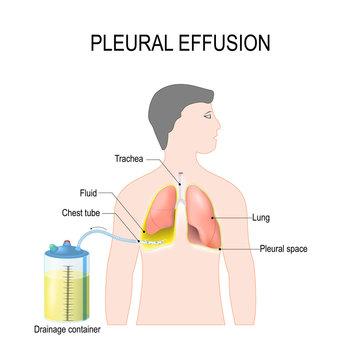 Pleural effusion. Treatment of tension hydrothorax