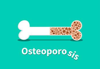 Osteoporosis, Bone structure in vector design