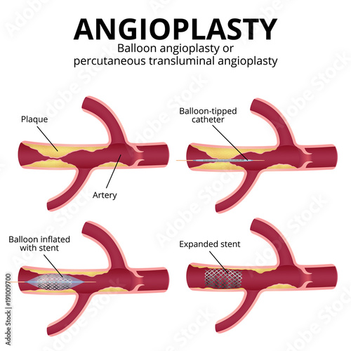 balloon angioplasty stock image and royalty free vector files on