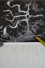 Изучение мозга после  инсульта - нейрона