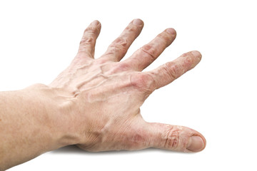 Psoriasis, skin disease on the joints of the body