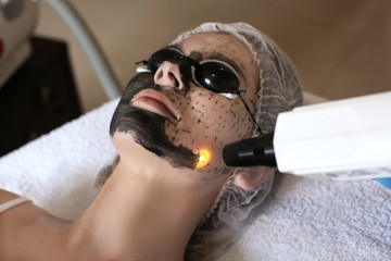Young woman undergoing carbon peeling procedure in salon