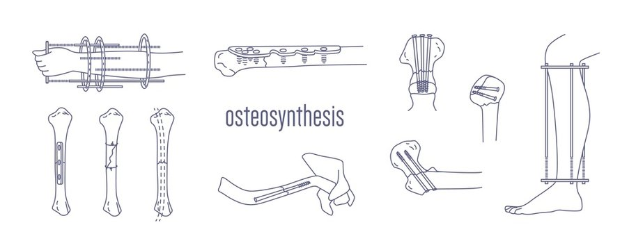 Collection of fractured bones and limbs fixed with metal implantable devices drawn with contour lines on white background. Bundle of osteosynthesis constructions. Monochrome vector illustration.