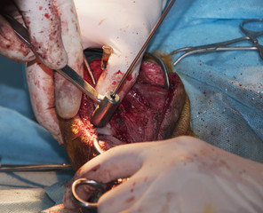 Surgery drillingholes in the bone (double osteotomy of the leg)
