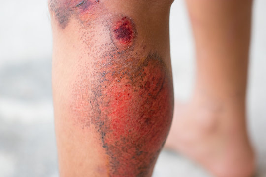 Wounds on the leg, Cause of motorbike accident. Soft focus and blur. Healthy concept.