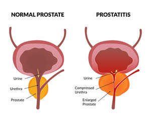 Prostatitis can cause cancer tumors without urgent treatment