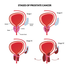 Four stages of prostate malignant tumor spreading.