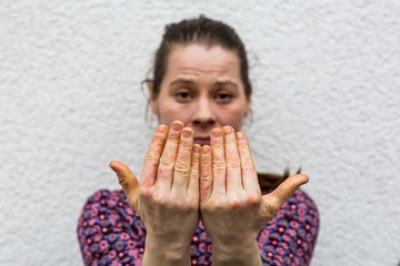 Young woman with dry and stressed red dyshidrotic eczema covered hands