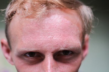 Burnt face of young caucasian man.