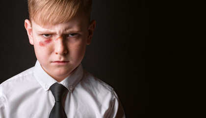 School boy with a wound on his face