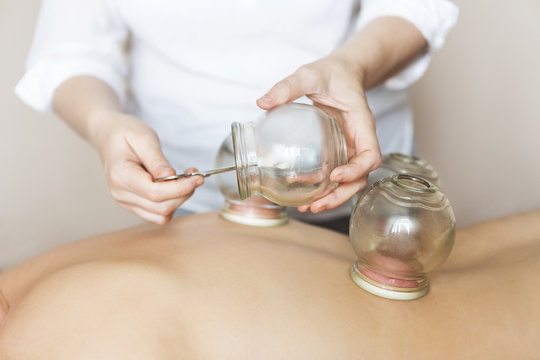 Fire cupping cups on back of female patient in Acupuncture therapy