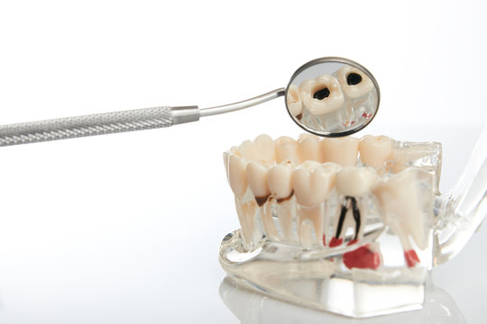 Dental jaw model with teeth, roots, gums, gum disease, tooth decay and plaque over white background, close-up. Dentistry treatment, whitening and prosthetics of teeth concept