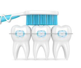 3d render of teeth with braces and toothbrush