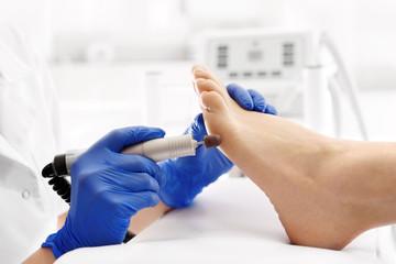 Pedicure leczniczy. Usuwanie odcisków na stopie.