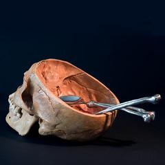 Skull With Cut Calvarium Exposing Cranial Vault With Bone Cutlery