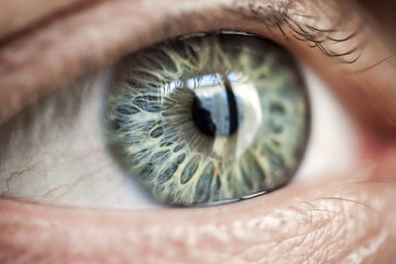 Human eye with very special patterned iris