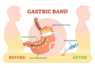 Gastric Band anatomical vector illustration diagram, medical before  after scheme.