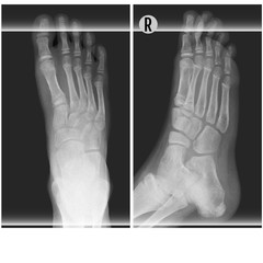 Human foot ankel and leg xray vector illustration. Top and right scan process
