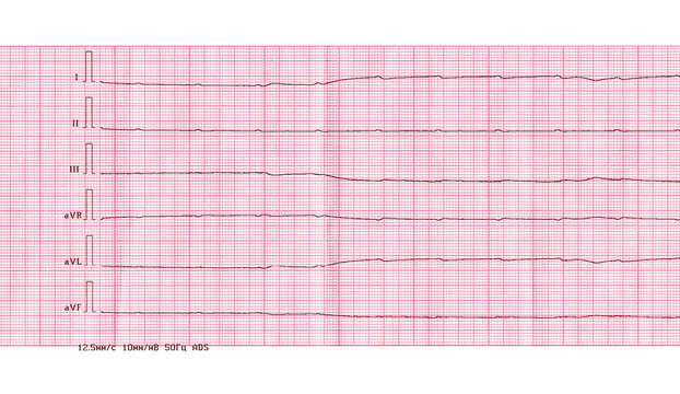 Emergency cardiology and resuscitation. ECG with ventricular asystole