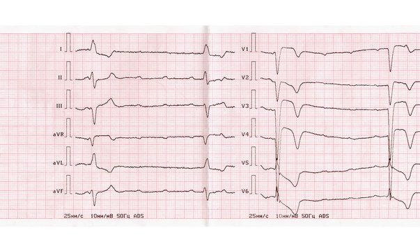 ECG with acute period of myocardial infarction, complete atrioventricular blockade