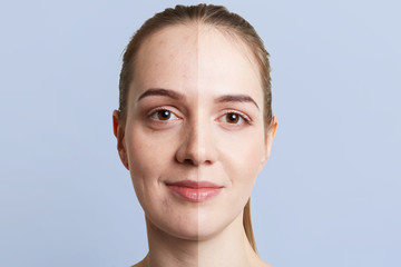Close up portrait of woman`s face divided into two parts: healthy pure skin and unhealthy with blackheads, contrast between two skins. Facial treatment, cosmetology, medicine and beauty concept