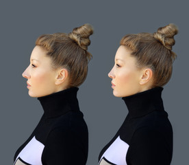 Rhinoplasty.Before and after